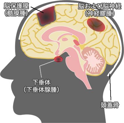 原発生脳腫瘍 イラスト