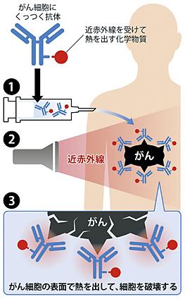 光免疫療法 図